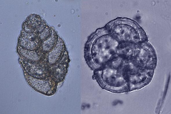 http://www.zoologie.frasma.cz/mmp%200103%20Rhizaria/Obr.%20010301.schranky%20dirkonoscu.OS_zmensenina.jpg